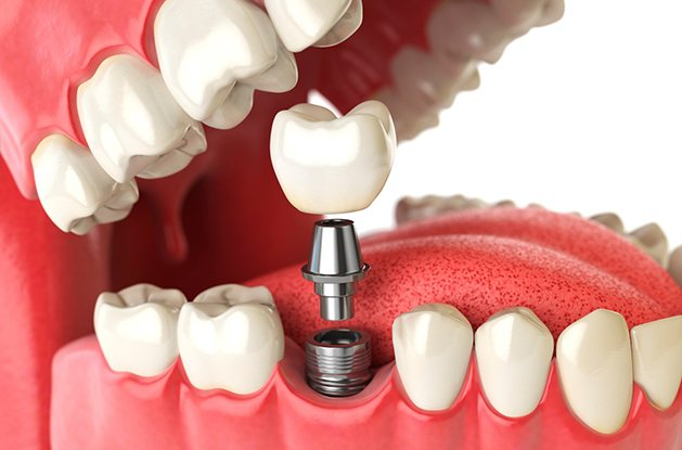 Model of implant supported dental crowns